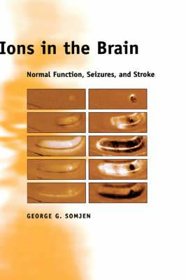 Ions in the Brain: Normal Function, Seizures, and Stroke