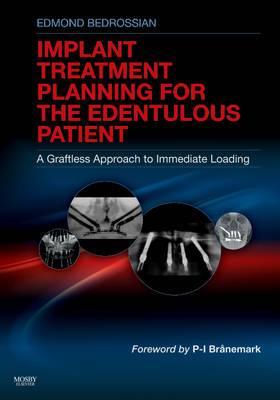 Treatment Planning for the Edentulous Patient