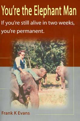 You're the Elephant Man: If You're Still Alive After Two Weeks, You're Permanent