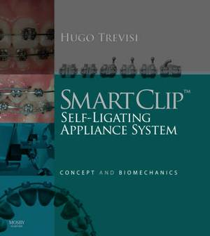 The SmartClip Self-Ligating Appliance System: Concept and Biomechanics