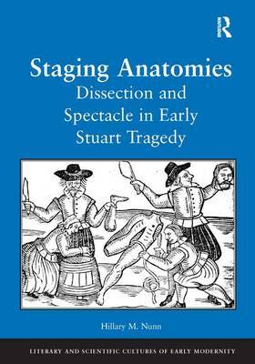 Staging Anatomies: Dissection and Spectacle in Early Stuart Tragedy