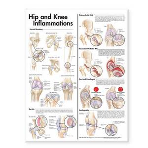 Hip and Knee Inflammations Anatomical Chart