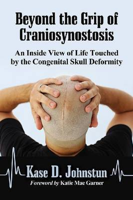 Beyond the Grip of Craniosynostosis: An Inside View of Life Touched by the Congenital Skull Deformity