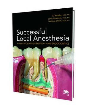 Successful Local Anaesthesia