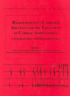 Radiofrequency Catheter Ablation