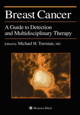 Breast Cancer: A Guide to Detection and Multidisciplinary Therapy