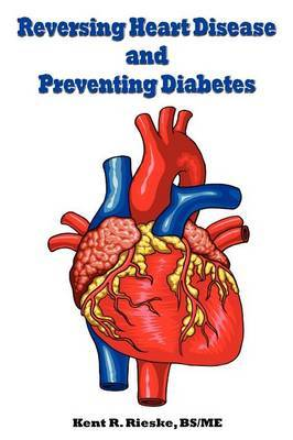 Reversing Heart Disease and Preventing Diabetes: Apply Science to Lower Cholesterol 100 Points; Reduce Arterial Plaque 50% in 25 Months; And Improve H