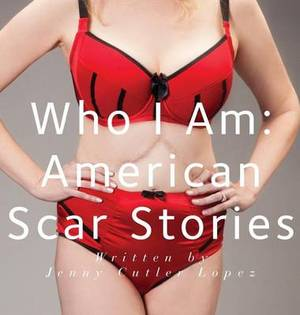 Who I Am: American Scar Stories