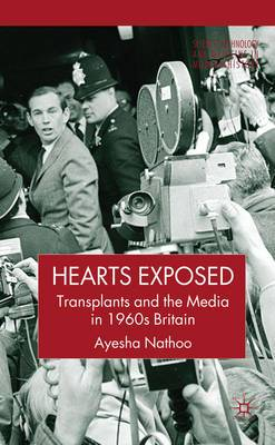 Hearts Exposed: Transplants and the Media in 1960s Britain
