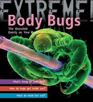 Extreme Science: Body Bugs!: The Uninvited Guests on Your Body