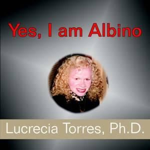 Yes, I am Albino