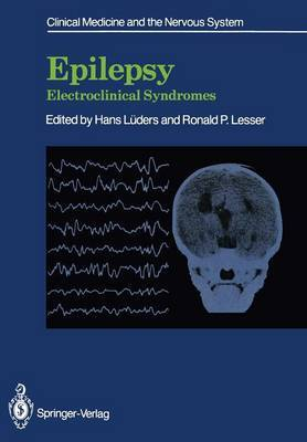 Epilepsy: Electroclinical Syndromes