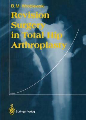 Revision Surgery in Total Hip Arthroplasty