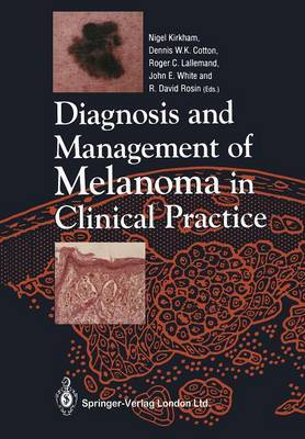 Diagnosis and Management of Melanoma in Clinical Practice