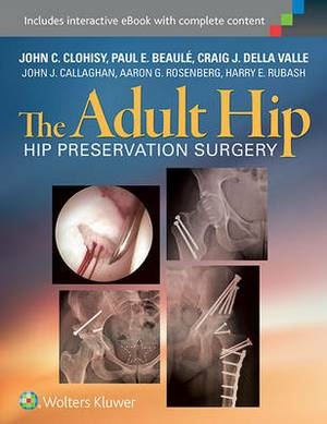 The Adult Hip