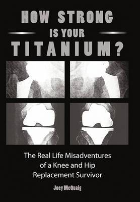 How Strong Is Your Titanium: The Real Life Misadventures of a Knee and Hip Replacement Survivor