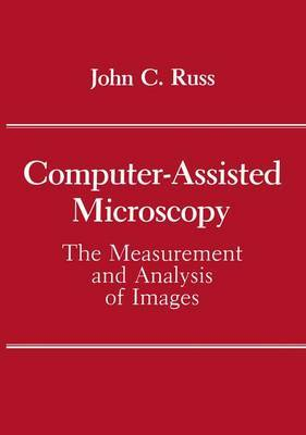 Computer-Assisted Microscopy: The Measurement and Analysis of Images