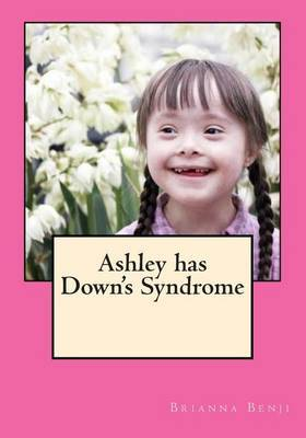 Ashley Has Down's Syndrome