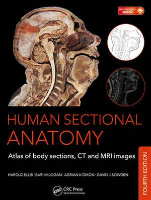 Human Sectional Anatomy: Atlas of Body Sections,CT and MRI Images