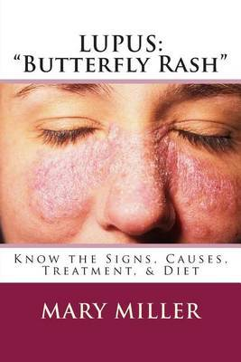 Lupus:  Butterfly Rash  Know the Signs, Causes, Treatment, & Diet