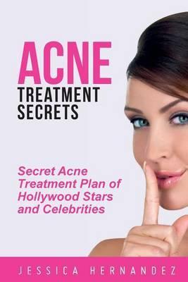 Acne Treatment Secrets: Secret Acne Treatment Plan of Hollywood Stars and Celebrities