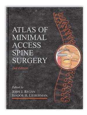 Atlas of Minimal Access Spine Surgery