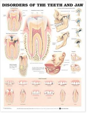 Disorders of the Teeth and Jaw Anatomical Chart