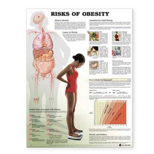 Risks of Obesity Anatomical Chart