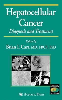 Hepatocellular Cancer: Diagnosis and Treatment