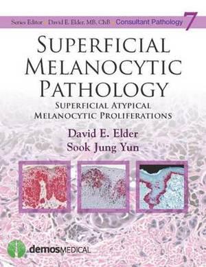 Superficial Melanocytic Pathology: Superficial Atypical Melanocytic Proliferations
