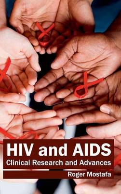HIV and AIDS: Clinical Research and Advances
