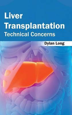 Liver Transplantation: Technical Concerns