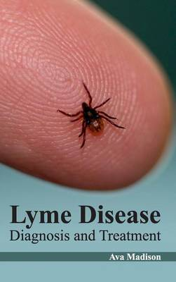 Lyme Disease: Diagnosis and Treatment