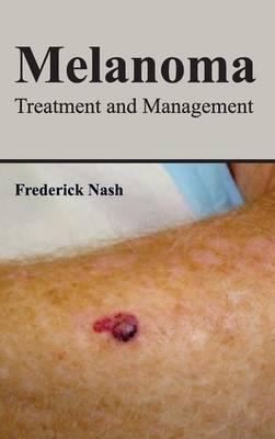Melanoma: Treatment and Management
