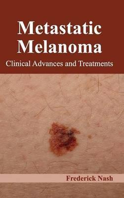 Metastatic Melanoma: Clinical Advances and Treatments