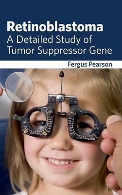 Retinoblastoma: A Detailed Study of Tumor Suppressor Gene