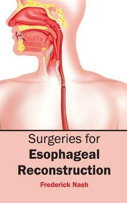 Surgeries for Esophageal Reconstruction