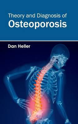 Theory and Diagnosis of Osteoporosis