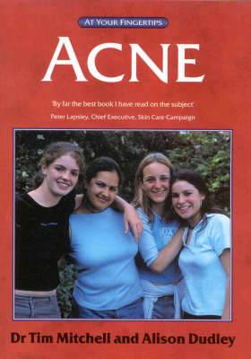 Acne: Answers at Your Fingertips