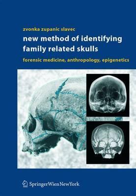 New Method of Identifying Family Related Skulls: Forensic Medicine, Anthropology, Epigenetics