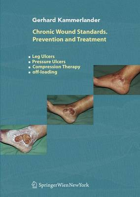 Chronic Wound Standards - Prevention and Treatment: Leg Ulcers, Pressure Ulcers, Compression Therapy, Off-loading