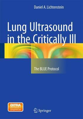 Lung Ultrasound in the Critically: The Blue Protocol: 2016: No.3