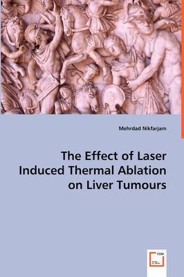 The Effect of Laser Induced Thermal Ablation on Liver Tumours
