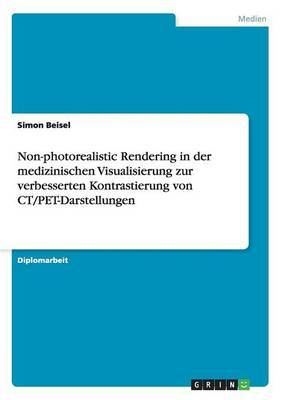 Non-Photorealistic Rendering in Der Medizinischen Visualisierung Zur Verbesserten Kontrastierung Von CT/Pet-Darstellungen