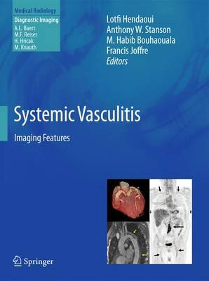 Systemic Vasculitis: Imaging Features: 2012