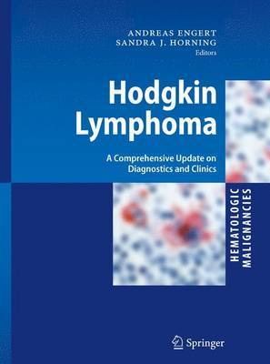 Hodgkin Lymphoma: A Comprehensive Update on Diagnostics and Clinics