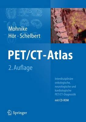 Pet/CT-Atlas: Interdisziplinare Onkologische, Neurologische Und Kardiologische Pet/CT-Diagnostik