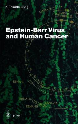 Epstein-Barr Virus and Human Cancer