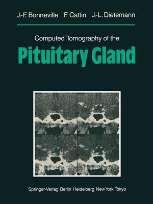 Computed Tomography of the Pituitary Gland: With a Chapter on Magnetic Resonance Imaging of the Sellar and Juxtasellar Region
