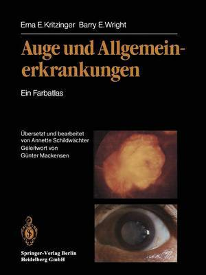 Auge Und Allgemeinerkrankungen: Ein Farbatlas